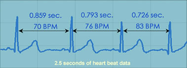 Heartbeat data